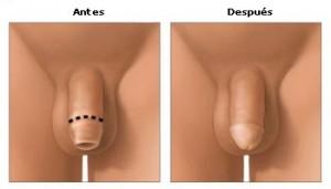 circuncison ad 300x171 Los beneficios de la circuncisión