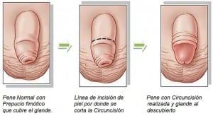 que es la circuncisión y sus beneficios