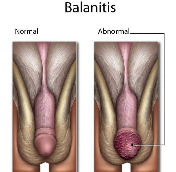 Enrojecimiento y picazon del pene, enfermedad Balanitis