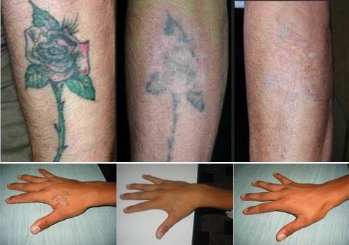 moda de los tatuajes. Tatuajes, una moda no tan definitiva