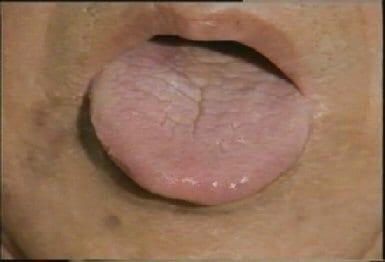 lengua-seca