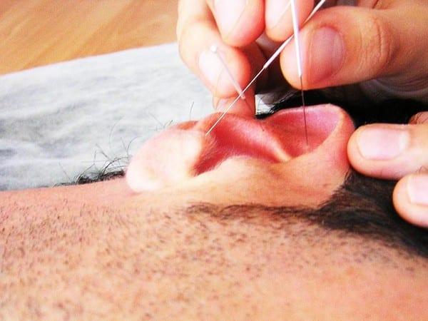 tratamientos alternativos la auriculoterapia