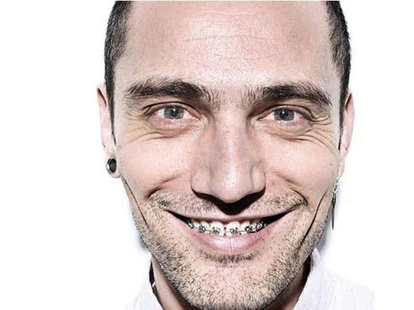 Hombre con aparato dental