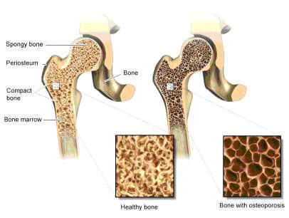 Huesos calcio