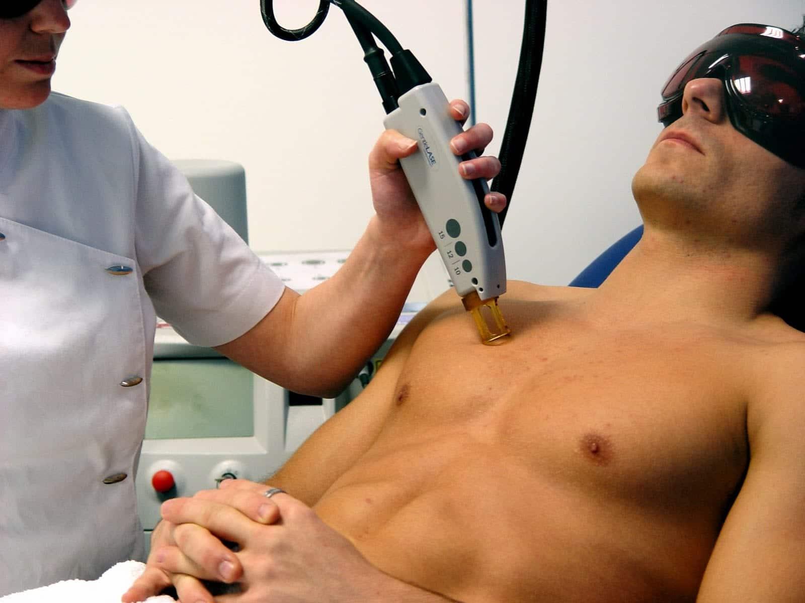 ¿Luz Pulsada o Láser para la depilación masculina?