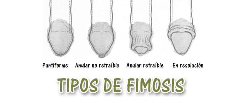 cuantos tipos de fimosis hay
