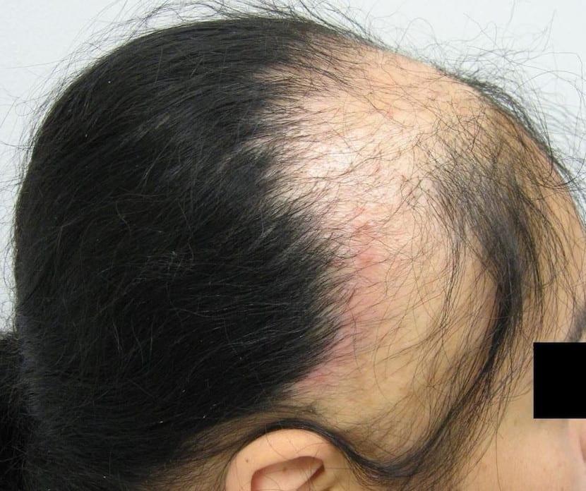 Alopecia traumática