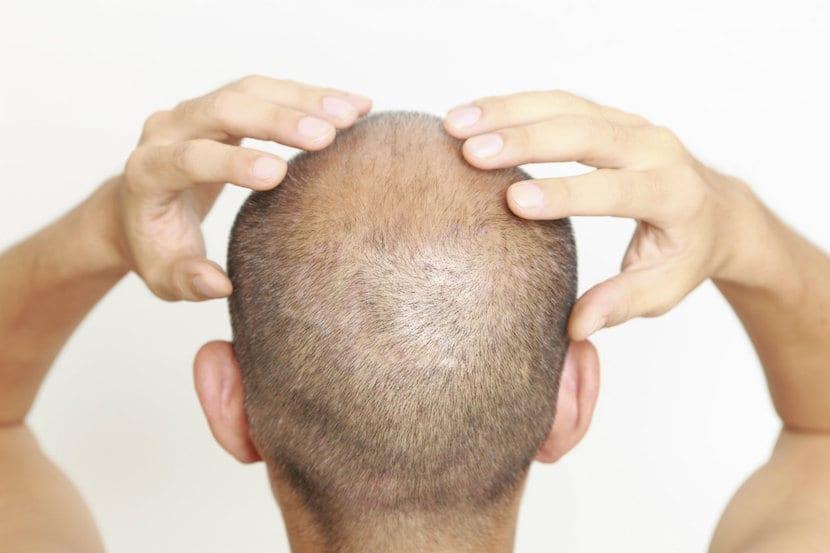 Tratamiento para la alopecia