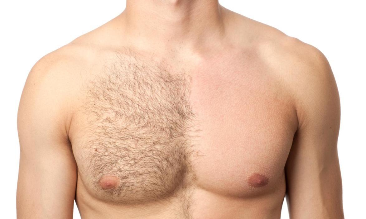 deberías depilarte