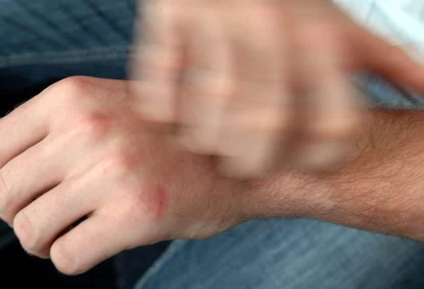 Picores en la piel