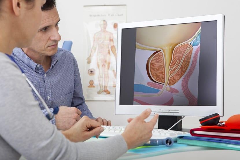 Prostatitis tratamientos
