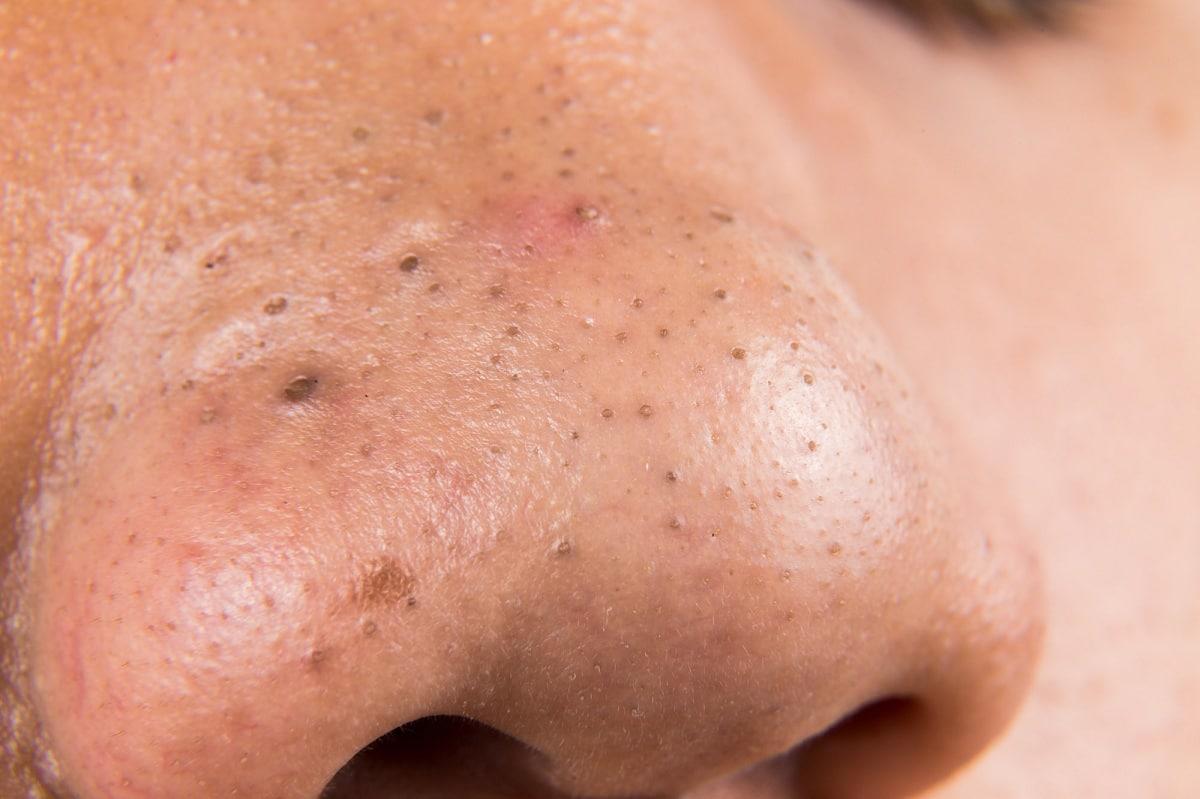 Cómo eliminar puntos negros de la nariz