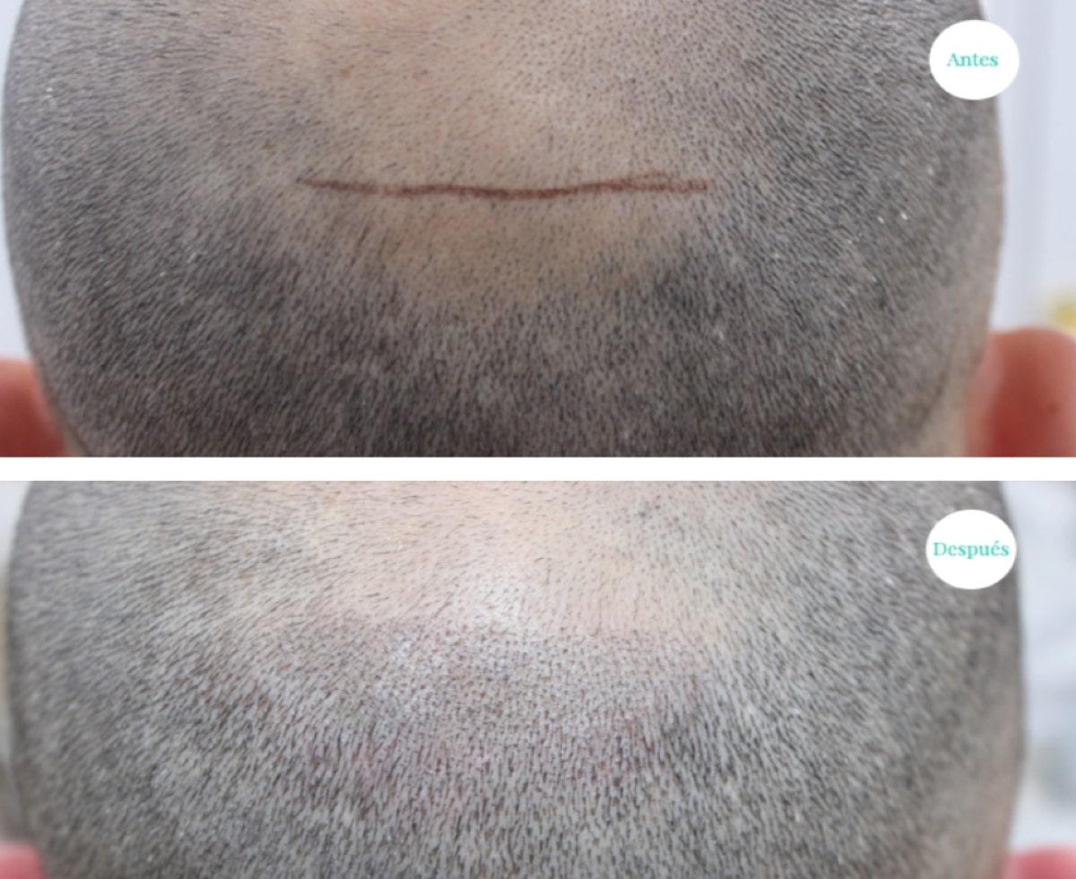 Micropigmentación en hombres
