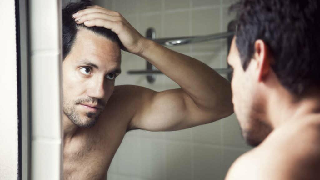 como saber si te vas a quedar calvo de joven