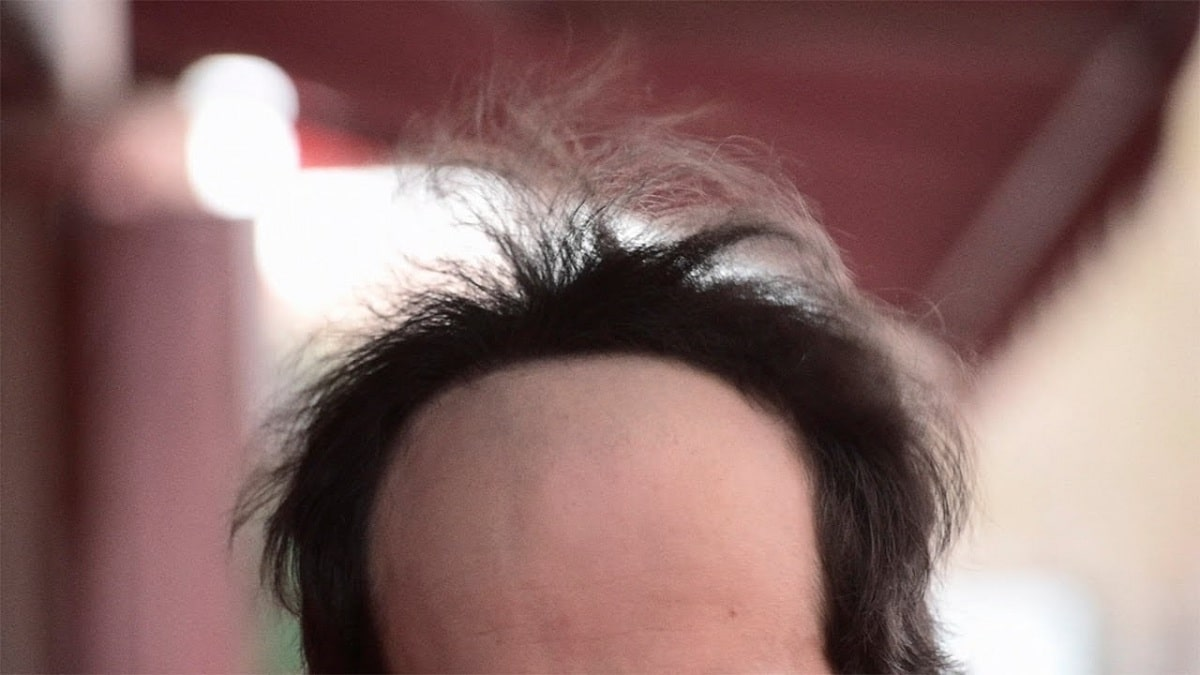 entradas del pelo