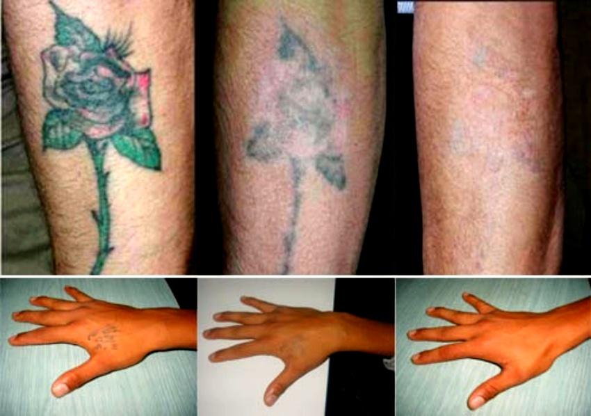 tatuajes q se borran